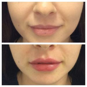 Dermal fillers before and after - lips 1