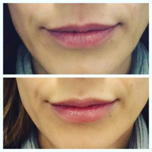 Dermal fillers before and after - lips 2
