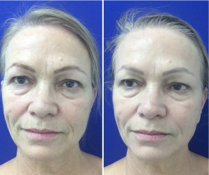 HydraFacial Before and After with one Treatment