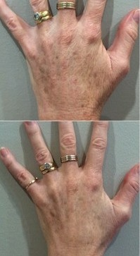 PRP treatment before and after - hand