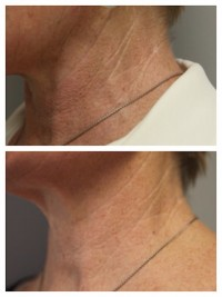 PRP treatment before and after - neck