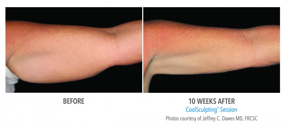 Coolsculpting Perth Results, Aspire Medispa