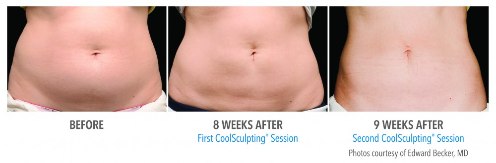 Coolsculpting Sydney Treatment, Aspire Medispa
